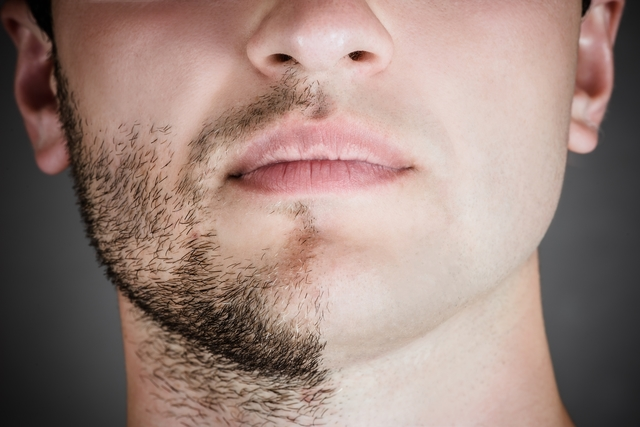 Minoxidil: Como usar na barba, cabelo e sobrancelha